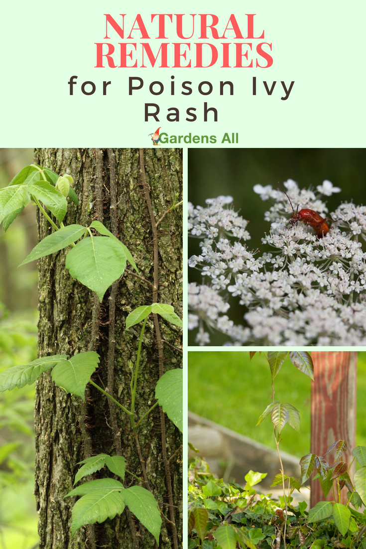 Poison Ivy rash can be excruciating.  The itchy red bumpy raised areas that can eventually ooze icky liquid can show up from a few hours to a few days after exposure. If you have poison ivy in your yard orarea, or like to do hiking in the woods, you'll want some natural remedies for poison ivy or poison oak in your medicine cabinet.